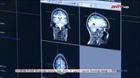 Mặt nạ in 3D hỗ trợ khả năng quét não
