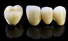 Ẩn hoạ khôn lường từ bọc răng sứ kém chất lượng