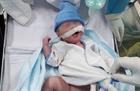 Một bé gái chào đời khỏe mạnh khi mẹ mắc Covid-19