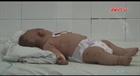 Đăk Lăk: Xác nhận bé trai 5 tháng tuổi dương tính với vi rút não mô cầu