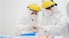 Xét nghiệm chất thải để phát hiện sớm virus SARS-CoV-2