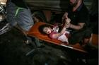 Nỗi đau tột cùng của trẻ em Gaza: Những giấc mơ bị chôn vùi
