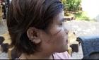 Bắt khẩn cấp nghi can chặn xe rạch mặt nữ công nhân